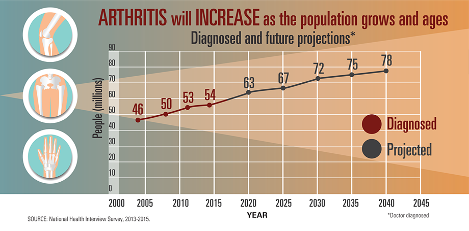 Younger People Impacted By Arthritis  Increasing, A Report From CDC